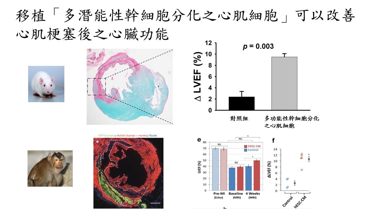 iPSC-CM改善心肌梗塞後之心臟功能